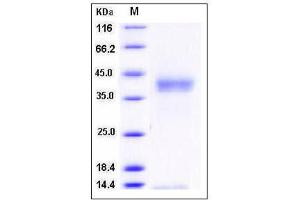 Image no. 1 for Protease, Serine 27 (PRSS27) (AA 1-290), (Extracellular Domain) (Active) protein (His tag) (ABIN2005051)