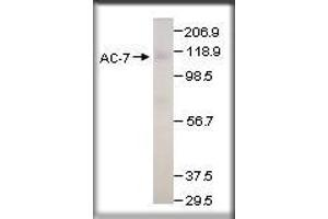 image for anti-Adenylate Cyclase 7 (Adcy7) antibody (ABIN493201)
