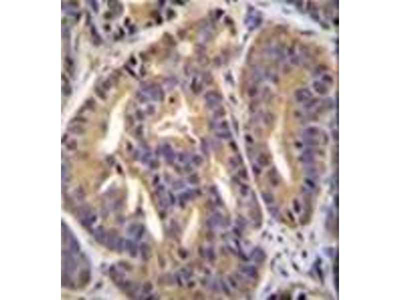 Immunohistochemistry (Paraffin-embedded Sections) (IHC (p)) image for anti-General Transcription Factor IIH, Polypeptide 2C (GTF2H2C) (AA 321-351), (C-Term) antibody (ABIN952647)