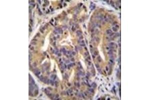 Image no. 3 for anti-General Transcription Factor IIH, Polypeptide 2C (GTF2H2C) (AA 321-351), (C-Term) antibody (ABIN952647)