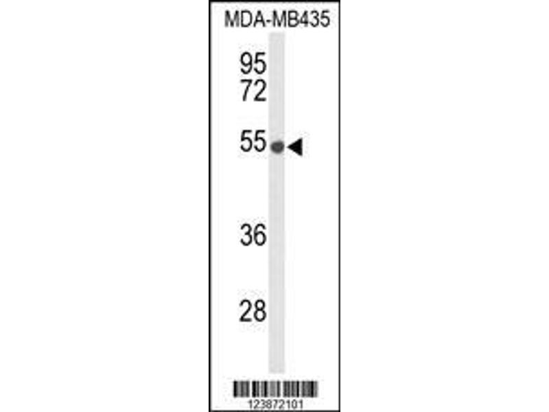 Western Blotting (WB) image for anti-DMC1 Dosage Suppressor of Mck1 Homolog, Meiosis-Specific Homologous Recombination (Yeast) (DMC1) (AA 1-30), (N-Term) antibody (ABIN653277)