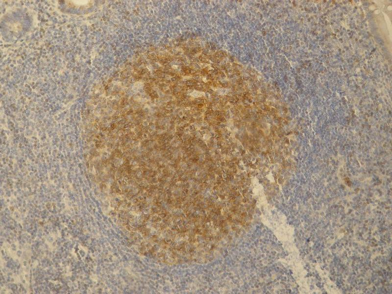 Immunohistochemistry (IHC) image for anti-PAG1 antibody (phosphoprotein Associated with Glycosphingolipid Microdomains 1) (C-Term) (ABIN94270)