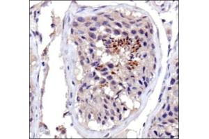 Immunohistochemistry (IHC) image for anti-DNMT3A antibody (DNA (Cytosine-5-)-Methyltransferase 3 alpha) (ABIN151733)