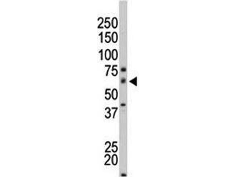 Western Blotting (WB) image for anti-PAK4 antibody (P21-Activated Kinase 4) (AA 156-187) (ABIN3032119)