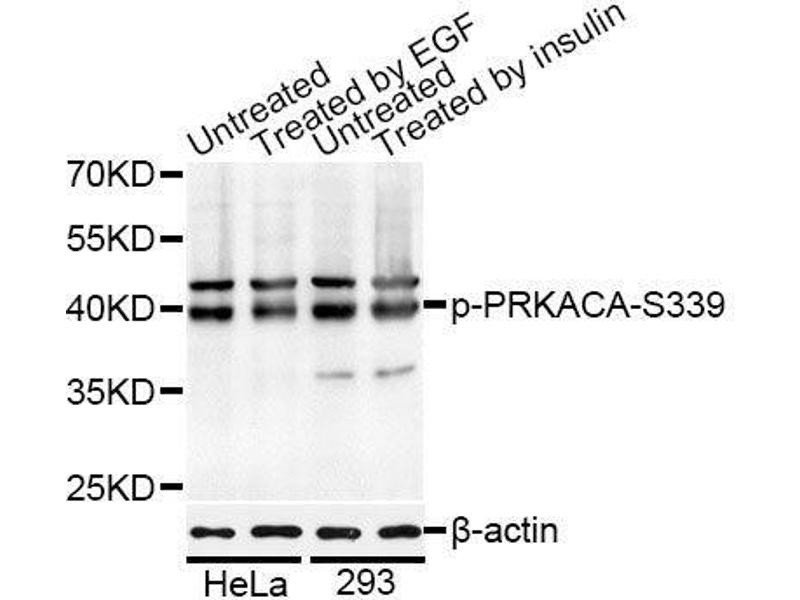 Western Blotting (WB) image for anti-Protein Kinase A, alpha (PRKACA) (pSer339) antibody (ABIN3060023)