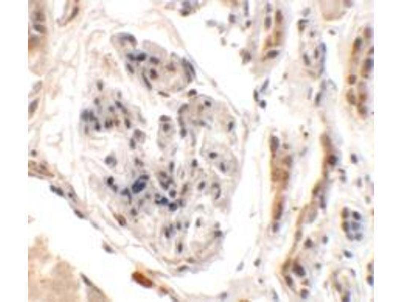 Immunohistochemistry (Paraffin-embedded Sections) (IHC (p)) image for anti-UHRF1 Binding Protein 1-Like (UHRF1BP1L) (Middle Region) antibody (ABIN1450050)