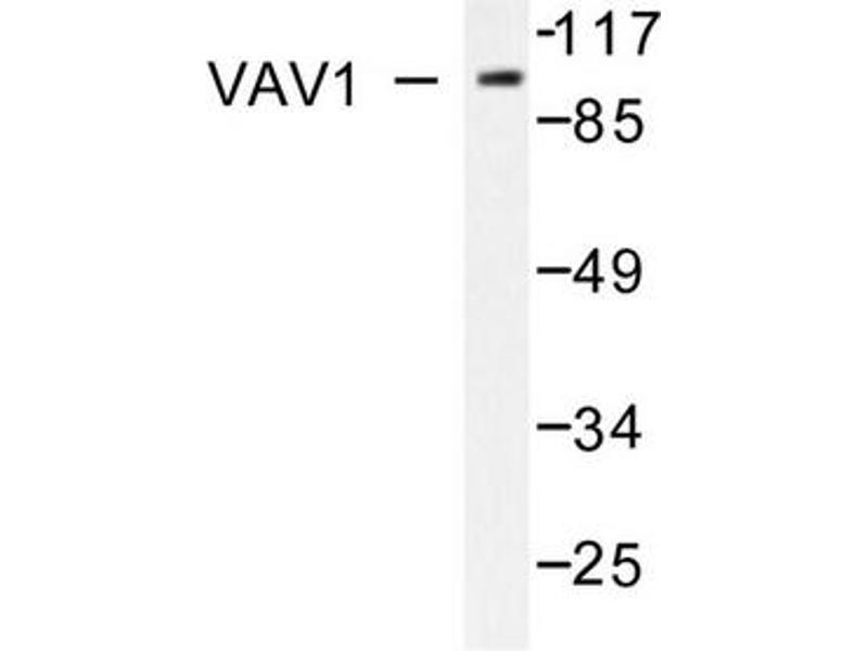 image for anti-VAV1 antibody (Vav 1 Oncogene) (ABIN271858)