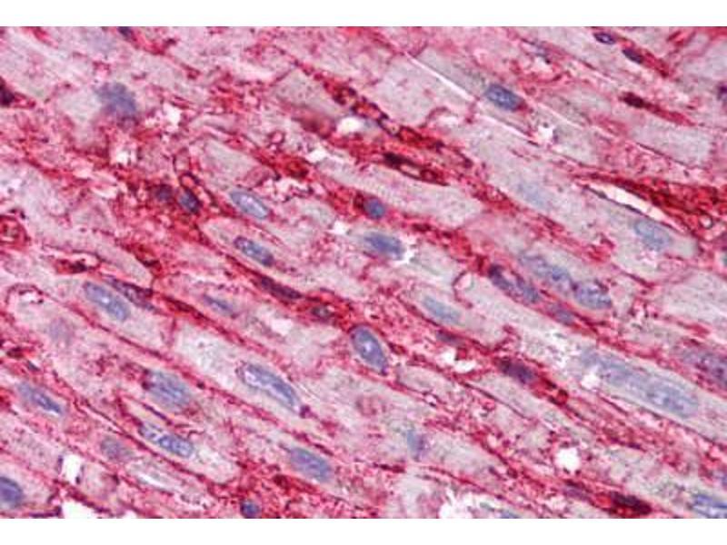 Image no. 1 for anti-CD36 Molecule (thrombospondin Receptor) (CD36) (AA 99-114) antibody (ABIN2618488)