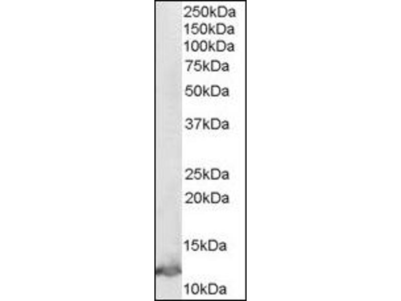 image for anti-Macrophage Migration Inhibitory Factor (Glycosylation-Inhibiting Factor) (MIF) (C-Term) antibody (ABIN372861)