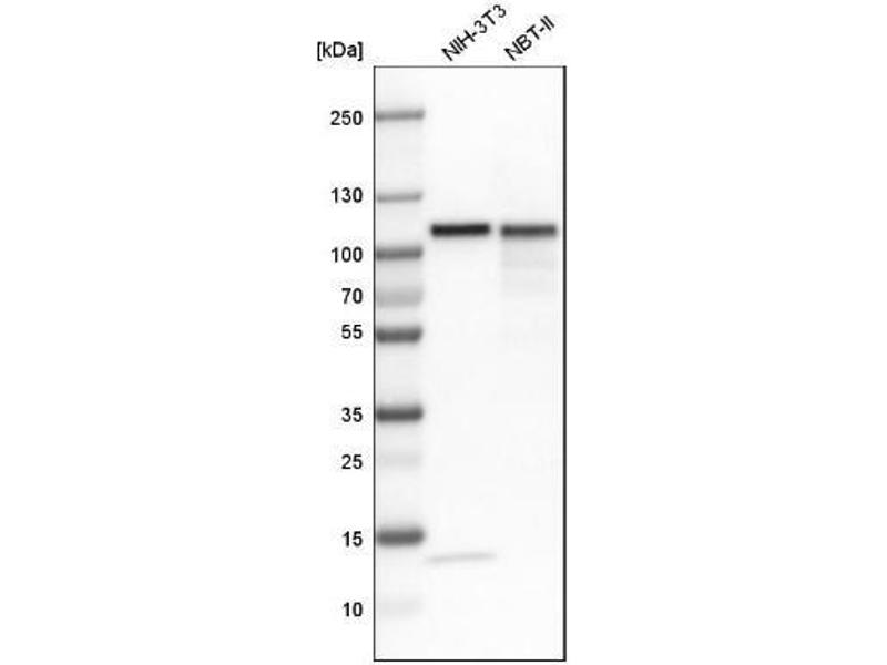 Western Blotting (WB) image for anti-Topoisomerase (DNA) I (TOP1) antibody (ABIN4361380)