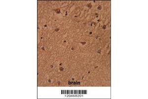 Immunohistochemistry (IHC) image for anti-BRISC and BRCA1 A Complex Member 1 (BABAM1) (AA 116-143), (Center) antibody (ABIN652514)