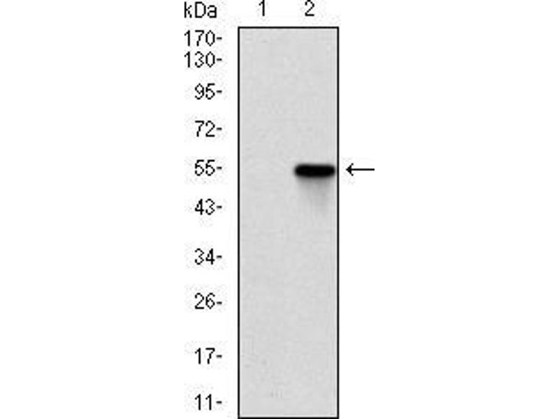 Western Blotting (WB) image for anti-rho-Associated, Coiled-Coil Containing Protein Kinase 1 (ROCK1) antibody (ABIN969563)