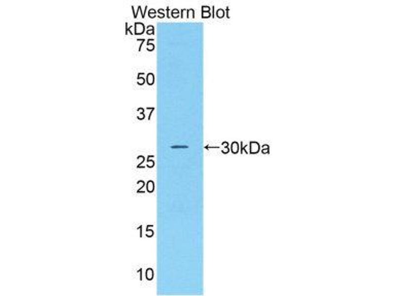 Western Blotting (WB) image for anti-Complement Factor D (CFD) (AA 1-263) antibody (ABIN1858380)