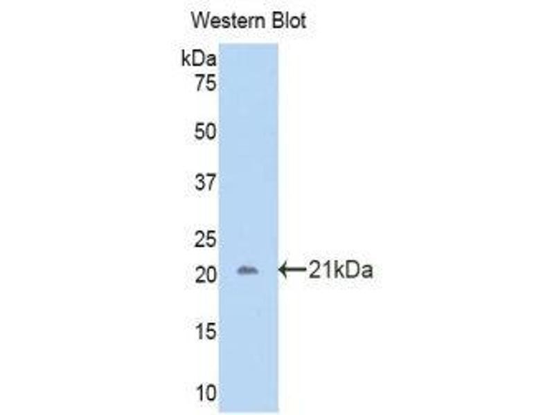 Western Blotting (WB) image for anti-CA12 (AA 161-318) antibody (ABIN1858202)