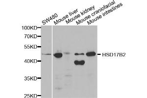 Image no. 1 for anti-Hydroxysteroid (17-Beta) Dehydrogenase 2 (HSD17B2) antibody (ABIN6569026)