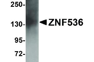 Image no. 1 for anti-Zinc Finger Protein 536 (ZNF536) (N-Term) antibody (ABIN6657215)