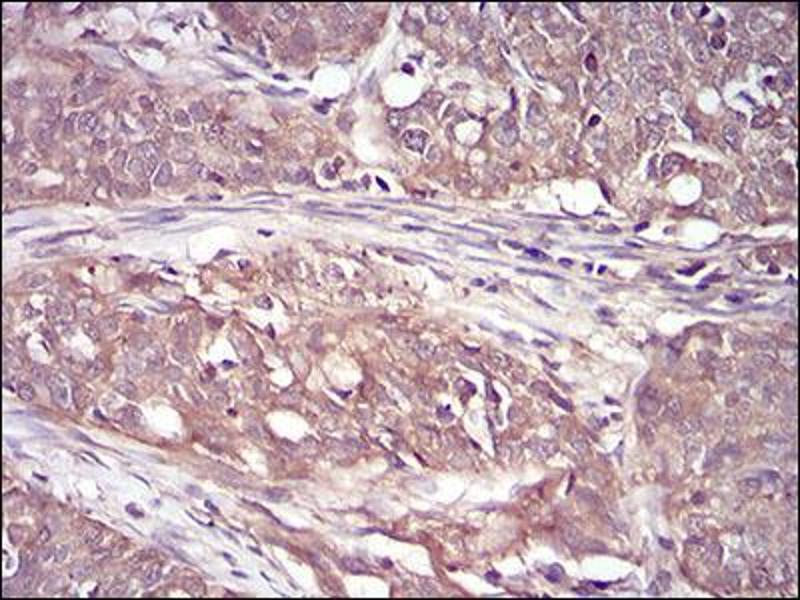 Immunohistochemistry (IHC) image for anti-Ribosomal Protein S6 Kinase, 90kDa, Polypeptide 2 (RPS6KA2) (AA 415-734) antibody (ABIN5542368)