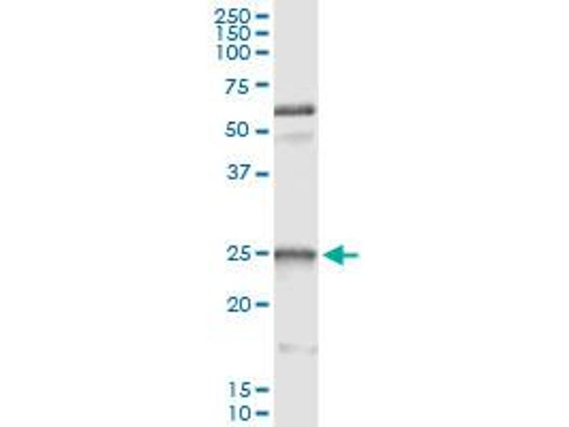 Immunoprecipitation (IP) image for anti-Heat Shock 27kDa Protein 1 (HSPB1) (AA 96-205), (partial) antibody (ABIN516740)