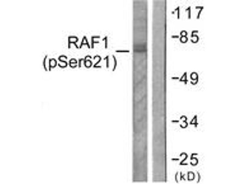 Western Blotting (WB) image for anti-RAF1 antibody (V-Raf-1 Murine Leukemia Viral Oncogene Homolog 1) (pSer621) (ABIN1531386)