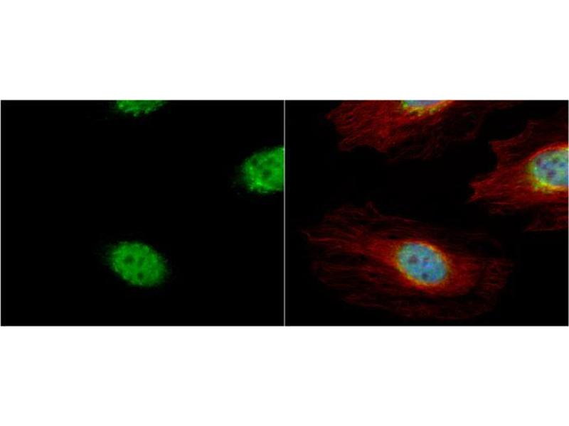 Immunofluorescence (IF) image for anti-Cyclin A antibody (Cyclin A2) (Center) (ABIN2855543)