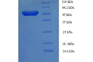Image no. 1 for TEA Domain Family Member 3 (TEAD3) (AA 112-435), (partial) protein (His-SUMO Tag) (ABIN5711743)