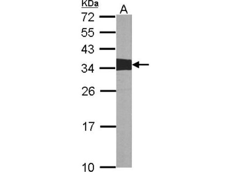 Western Blotting (WB) image for anti-Crk antibody (V-Crk Sarcoma Virus CT10 Oncogene Homolog (Avian)) (Center) (ABIN442021)