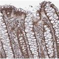 Immunohistochemistry-Paraffin: TREX1 Antibody  - Staining of human colon shows moderate nuclear positivity in glandular cells.