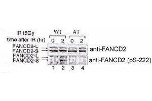 Western Blotting (WB) image for anti-FANCD2 antibody (Fanconi Anemia, Complementation Group D2) (pSer222) (ABIN151945)