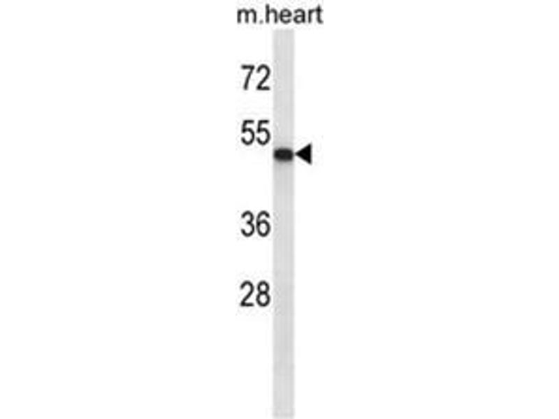 Western Blotting (WB) image for anti-Abl-Interactor 2 (ABI2) (AA 1-30), (N-Term) antibody (ABIN950216)