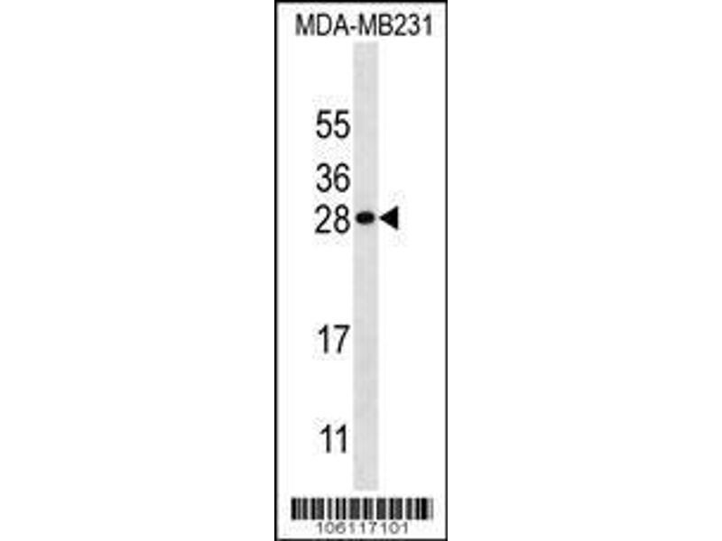 Western Blotting (WB) image for anti-Kallikrein 7 antibody (KLK7) (Center) (ABIN2488650)