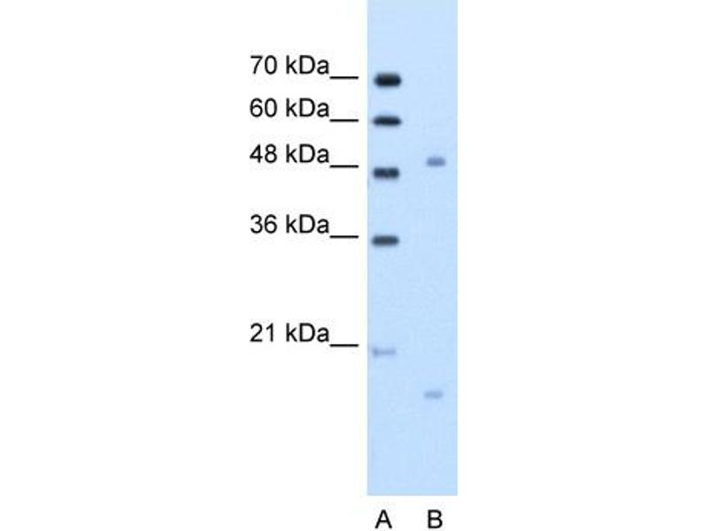 Western Blotting (WB) image for anti-Integrin, beta-Like 1 (With EGF-Like Repeat Domains) (ITGBL1) (N-Term) antibody (ABIN310296)