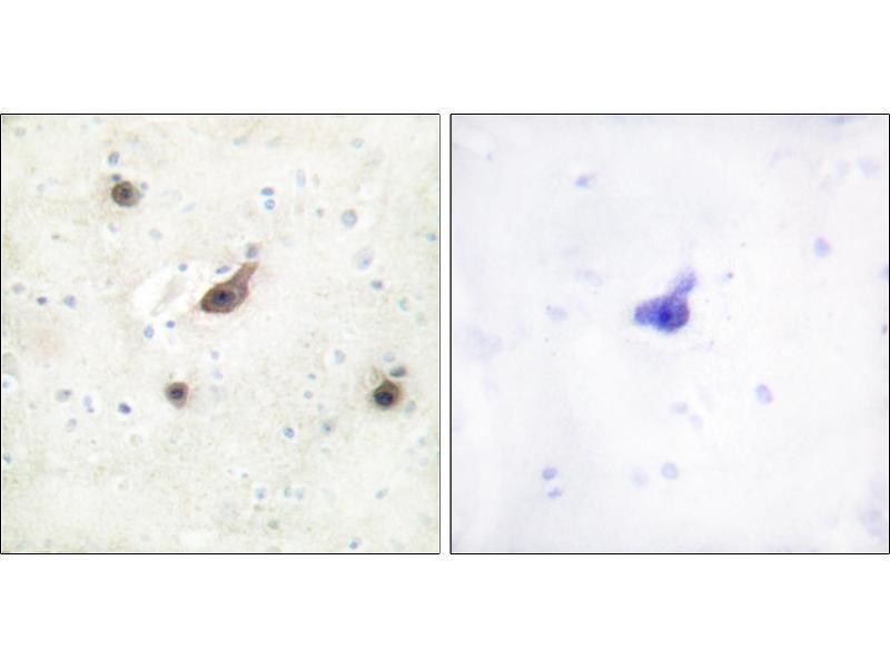 Immunohistochemistry (IHC) image for anti-BRAF antibody (V-Raf Murine Sarcoma Viral Oncogene Homolog B1) (ABIN2163048)