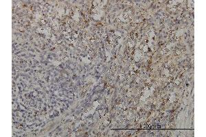 Immunostaining (ISt) image for anti-GRB2-Related Adaptor Protein 2 (GRAP2) (AA 226-315), (partial) antibody (ABIN564056)