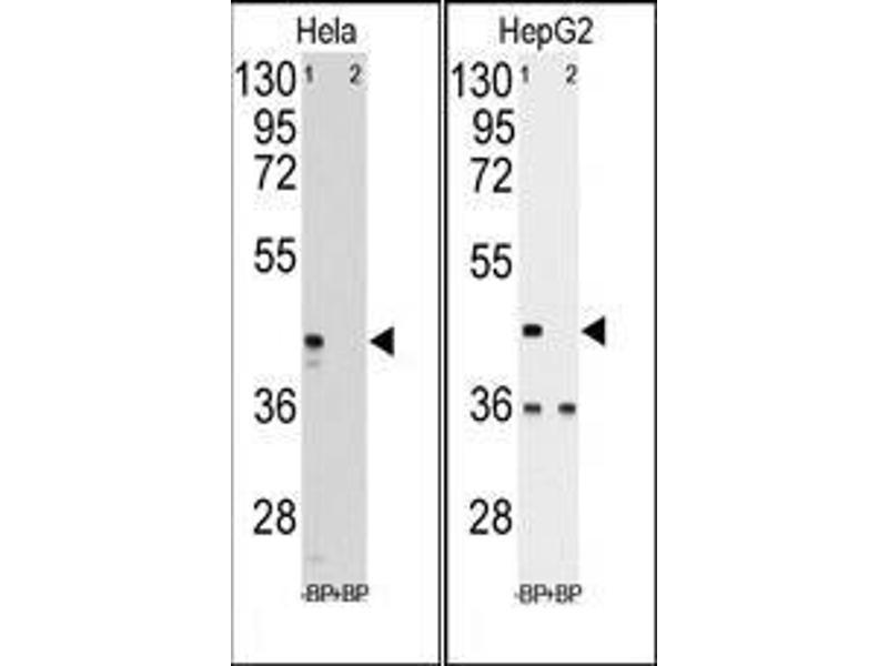 Western Blotting (WB) image for anti-Phosphoglycerate Kinase 1 (PGK1) (Middle Region) antibody (ABIN359337)