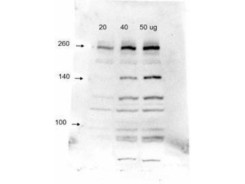 Western Blotting (WB) image for anti-Kinase insert Domain Receptor (A Type III Receptor tyrosine Kinase) (KDR) (AA 1158-1365), (C-Term) antibody (ABIN152058)