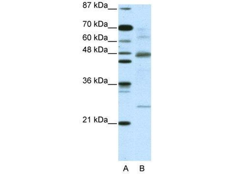 Western Blotting (WB) image for anti-NFKBIB antibody (Nuclear Factor of kappa Light Polypeptide Gene Enhancer in B-Cells Inhibitor, beta) (C-Term) (ABIN2775837)