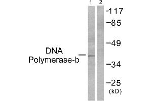 Image no. 2 for anti-Polymerase (DNA Directed), beta (POLB) antibody (ABIN1576094)