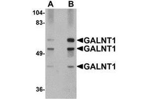 Image no. 2 for anti-UDP-N-Acetyl-alpha-D-Galactosamine:polypeptide N-Acetylgalactosaminyltransferase 10 (GalNAc-T10) (GALNT10) (N-Term) antibody (ABIN499867)