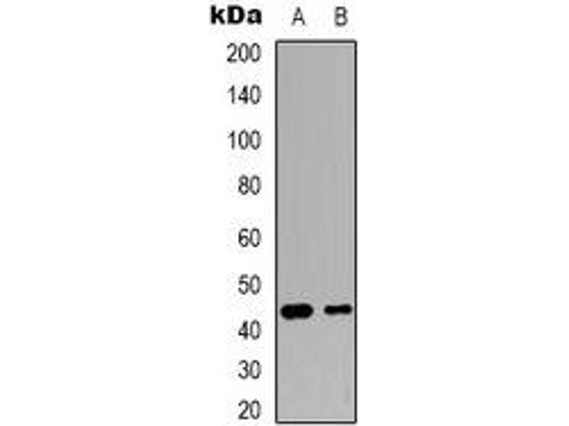 Western Blotting (WB) image for anti-C-JUN antibody (Jun Proto-Oncogene) (ABIN2957889)