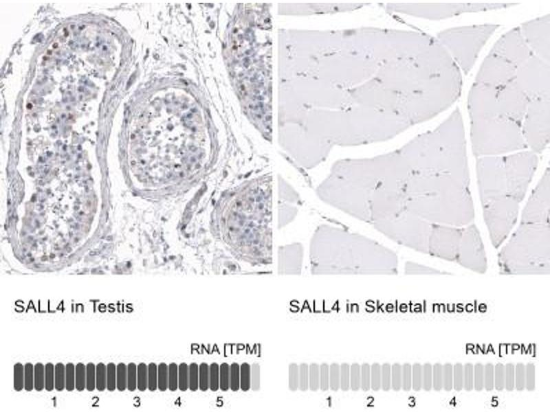 Immunohistochemistry (Paraffin-embedded Sections) (IHC (p)) image for anti-Sal-Like 4 (Drosophila) (SALL4) antibody (ABIN4351917)