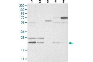 Image no. 2 for anti-Histidine Triad Nucleotide Binding Protein 3 (HINT3) antibody (ABIN5579821)
