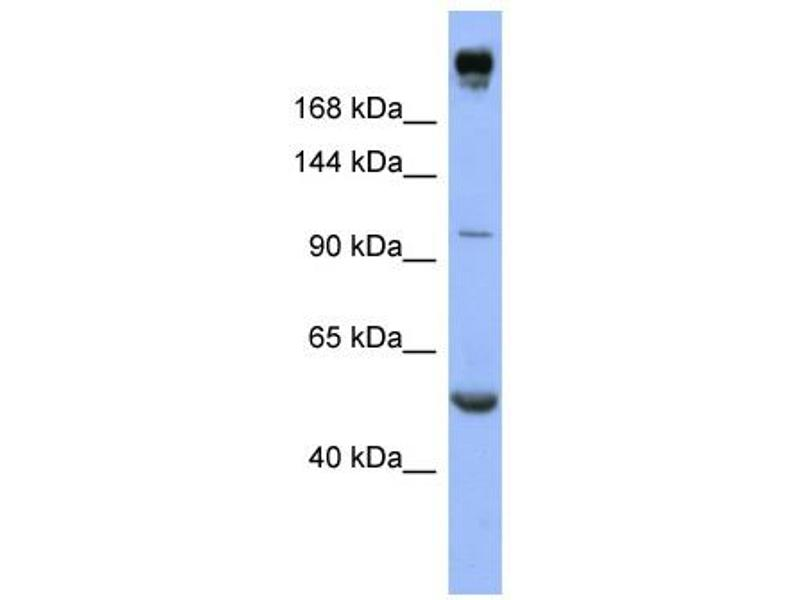 Western Blotting (WB) image for anti-Insulin Receptor (INSR) (Middle Region) antibody (ABIN2776774)