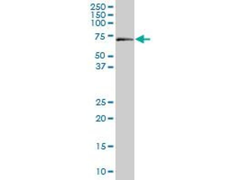 Western Blotting (WB) image for anti-Aminolevulinate, delta-, Synthase 1 (ALAS1) (AA 1-99) antibody (ABIN395524)