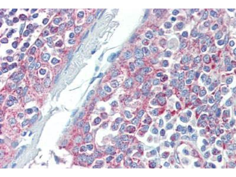 Immunohistochemistry (Paraffin-embedded Sections) (IHC (p)) image for anti-DIABLO antibody (Second Mitochondria-Derived Activator of Caspase) (ABIN462354)