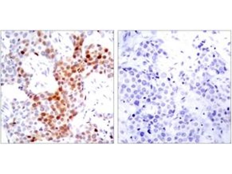 Immunohistochemistry (IHC) image for anti-Activating Transcription Factor 2 (ATF2) (AA 36-85), (pSer69) antibody (ABIN1531776)