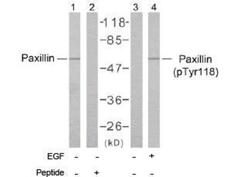 image for anti-Paxillin antibody (PXN) (Tyr118) (ABIN197279)