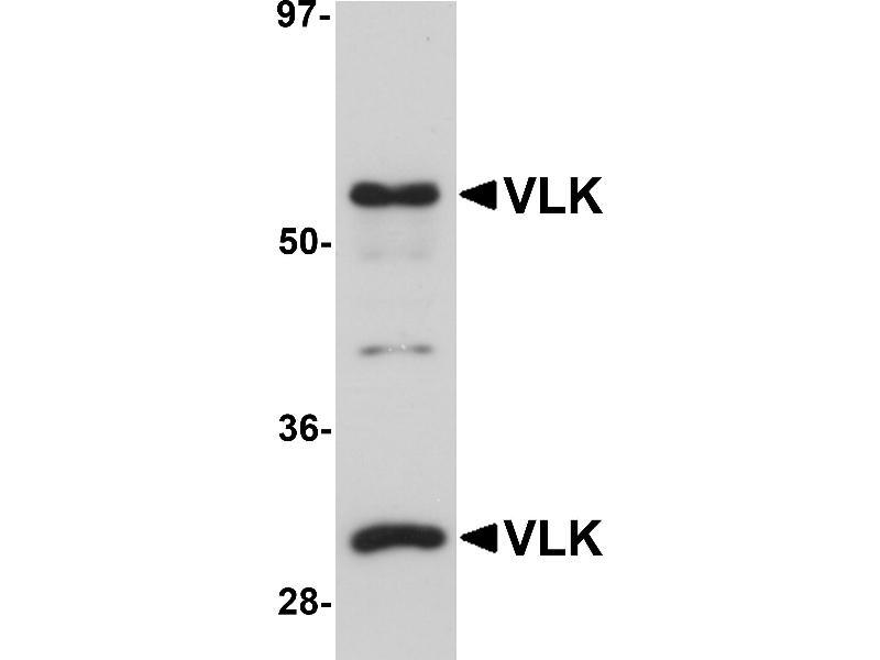 Image no. 2 for anti-Protein Kinase Domain Containing, Cytoplasmic Homolog (Mouse) (PKDCC) (Middle Region) antibody (ABIN1031161)