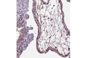 Immunohistochemistry (Paraffin-embedded Sections) (IHC (p)) image for anti-Amphiregulin (AREG) antibody (ABIN4280428)