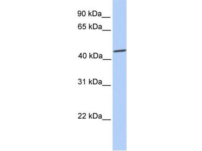 Western Blotting (WB) image for anti-SRY (Sex Determining Region Y)-Box 9 (SOX9) (C-Term) antibody (ABIN2780338)