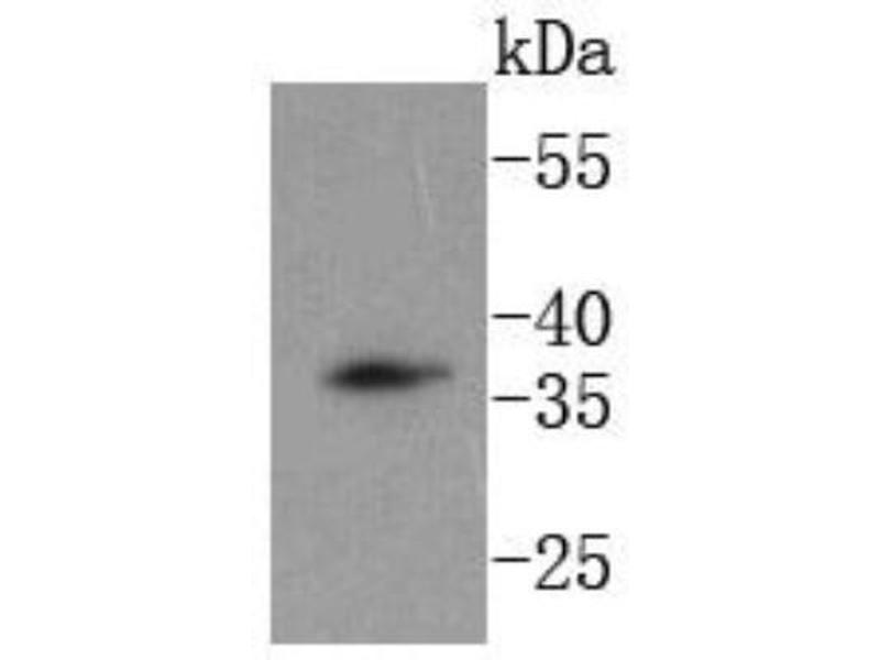 Western Blotting (WB) image for anti-Dickkopf Homolog 1 (Xenopus Laevis) (DKK1) (AA 250-350) antibody (ABIN5947970)
